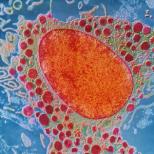ТЕСТ Как работи имунната ви система