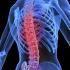 Остеопороза-симптоми и лечение