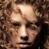 За какви заболявания може да подскаже косата ни