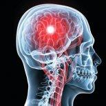 Инсулт-симптоми и лечение