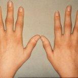 Алкохол срещу ревматоиден артрит