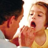 Рисковете от лятната ангина при децата