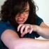 Какво представлява Уртикария - копривна треска