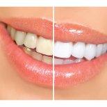 Как да си направим домашна избелваща паста за зъби