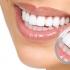 Какво представлява зъбния камък