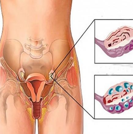 Поликистоза на яйчниците лечение