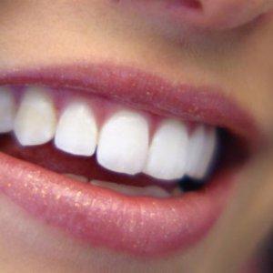 Естествено избелване на зъби