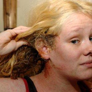 Как да отстраним боята за коса по кожата