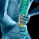 Вредни навици, на които се дължи болката в гърба
