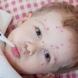 Бум на заразени с варицела деца