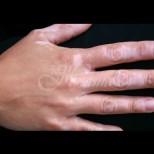 4 природни средства за лечение на витилиго