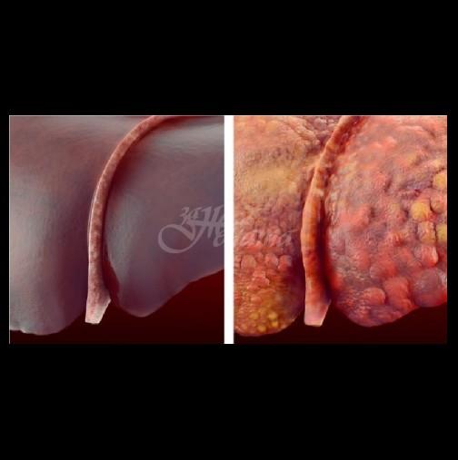 5 домашни рецепти за бързо пречистване на черния дроб