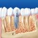 Какво е по-добре - щифтове, или импланти? Всички капани при имплантиране на зъби-Каква е процедурата