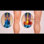 Как да укрепим стените на кръвоносните съдове- 4 домашни средства, които работят