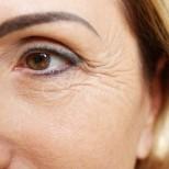 Типове на застаряване при жените-Фини бръчки морфотип-Уморен морфотип, Комбиниран тип