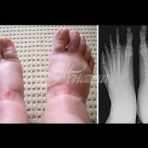 Подуването на краката може да е сигнал за опасна болест