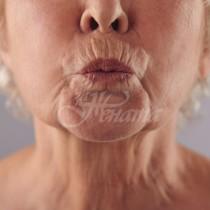 5 домашни маски, които премахват дълбоките бръчки около устата
