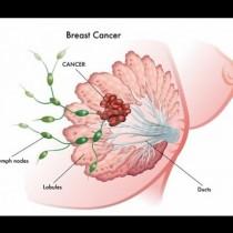 Броят на заболелите жени от рак на гърдата в България се увеличава постоянно, а възрастта намалява