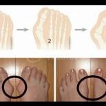3 начина да се отървете от бурсит без операция