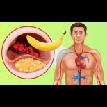 Защо бананите са толкова полезни за кръвоносните ни съдове и е хубаво да ги консумираме често