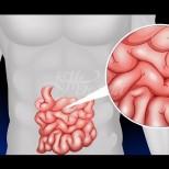 Начини за нормализиране работата на дебелото черво