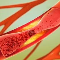 Най-мощното домашно лекарство за високо кръвно налягане