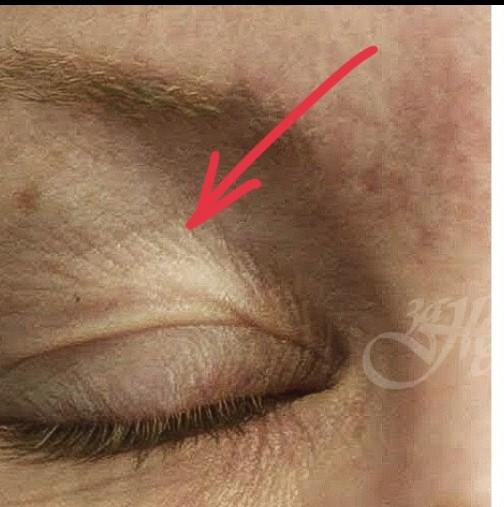 Как да върнем младостта на кожата на клепачите? 5 доказани метода, които ще ви предпазят от скалпа