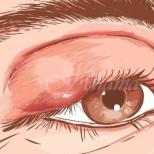 Как да излекуваме ечемика на окото си