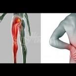 Най-доброто средство за възпаление и болка при ишиас!