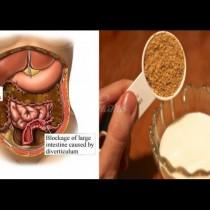 6 билки за бързо прочистване на дебелото черво