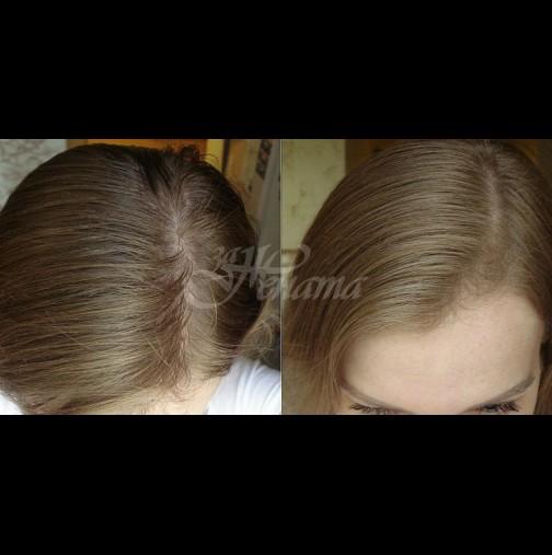 Край на мазната коса, домашен шампоан за моментно премахване на мазните корени
