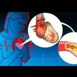 9 опасни симптома на сърдечно заболяване, които не трябва да пренебрегвате