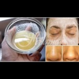 5 домашни маски за лице за мазна кожа, които отпушват порите