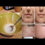 Премахване на бръчки и стягане на кожата с 2 натурални съставки, които вършат чудеса