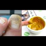 Идва лято - да се погрижим за ноктите на краката с това супер-средство, което буквално изяжда гъбичките: