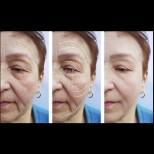 3 маски за дами над 50г., които ще свалят по 10 години от лицето ви