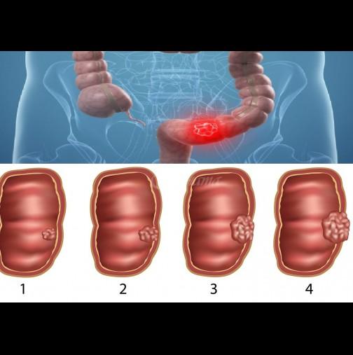 6-те Тихи симптоми на рак на дебелото черво, които никога не игнорирайте!