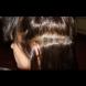 Жена почина, след присаждане на коса