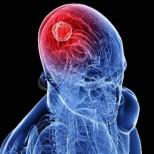 Онколозите разкриха първи симптом на рак на мозъка