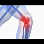 Симптоми на шипове в коляното и начини на лечение