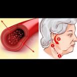 Регулиране на кръвното без лекарства - Топ начини за помощ при високо кръвно