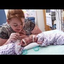Когато сиамските близначета се родиха със срастнати главички, никой не им даваше шанс за живот. Ето как изглеждат днес (Снимки):