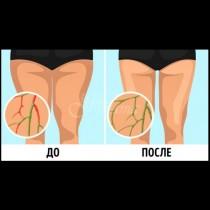 6 лесни и прости упражнения за подобряване на лимфния дренаж и бързо смъкване на мазнините в проблемните зони (видео)