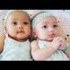 Когато се родиха, никой не вярваше, че са близначки-Сега са на 20 и ето как изклеждат-Все още много хора не вярват