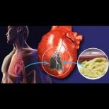 Кардиолозите алармират: погледнете в хладилника си. 4 от 6 инфаркта са пряко свъразани с тези храни