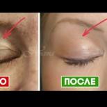 5 доказани начини как да върнете младостта на  кожата на клепачите у дома