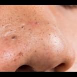 Единственото ефикасно оръжие срещу черни точки - маска от един продукт ги изтръгва от корен, чисти и мустачки: