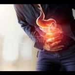 Първи признаци на рак на дебелото черво