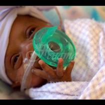 Ето колко тежи най-малкото бебе в света, дълго едва 23 сантиметра