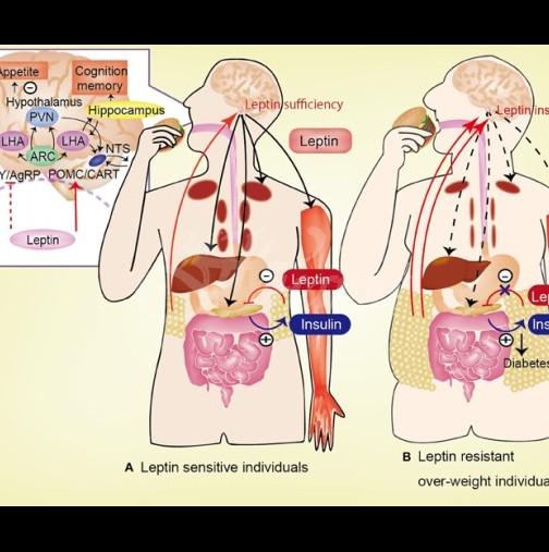 Разлики между преддиабетно и диабетно състояние, които трябва да знаете
